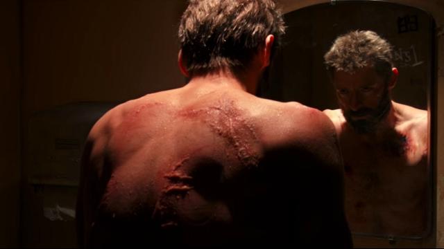 4-logan-scar